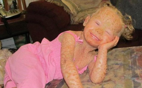 Little Georgia was born with the debilitating condition which leaves her skin sore and scaly