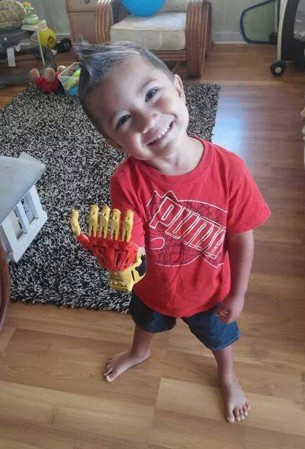Rayden Kahae beams as he poses wearing his new Iron Man hand, built using a 3D printer.