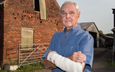 The brave pensioner was left was a broken nose and arm after the vicious attack