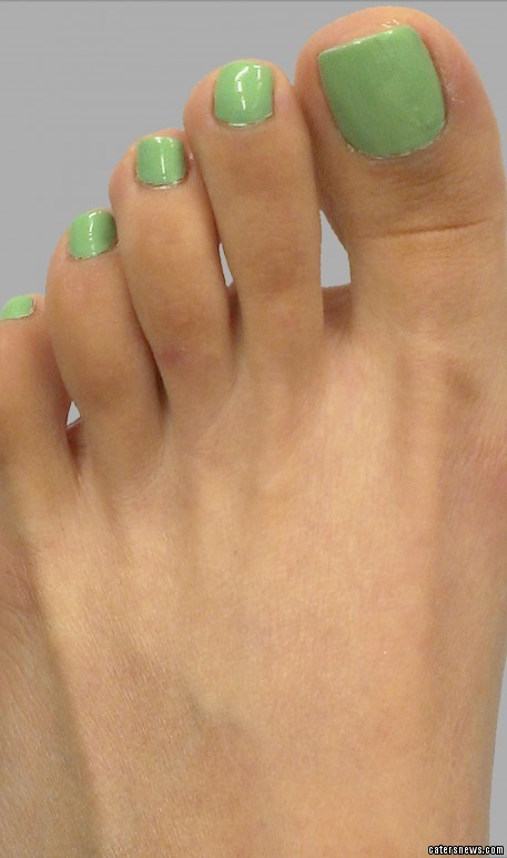 The operation, which costs thousands, has seen some women have their toes shortened or their feet completely reshaped