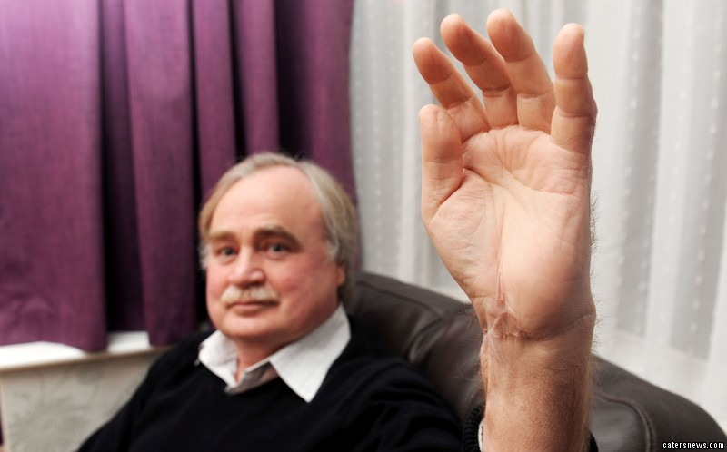 Stan Smith, 60 has made a miracle recovery after sawing off his hand