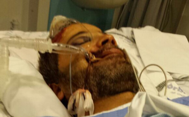 Mahmoud Hussein, 46, was left fighting for his life in a coma after he was smashed in the face with a brick