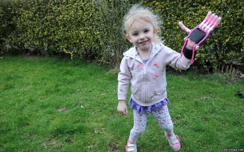 Little Brooke Jackson has received a princess prosthetic - created with a 3D printer