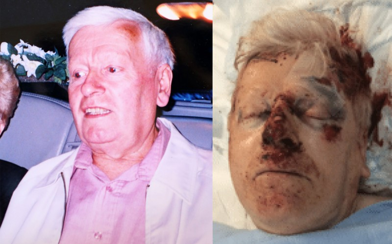 Reginald Stocking  has been left with a broken eye socket and chipped skull after a brutal carjacking
