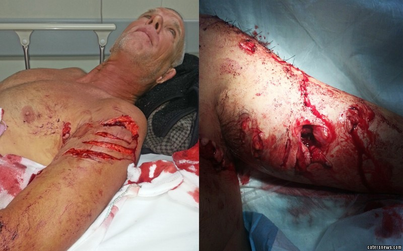 Mark Rackley was left needing an incredible 58 stitches after surviving being attacked by a rare shark