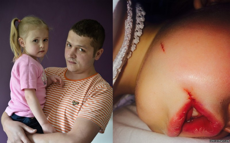 The 4-year-old was bounced between two A&E departments after splitting open her lip