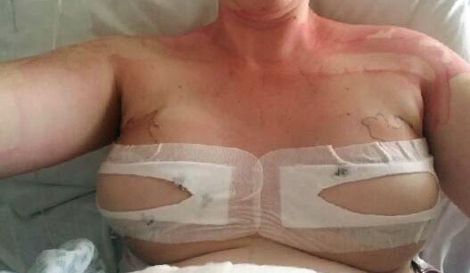 Katie after having her breasts reconstructed