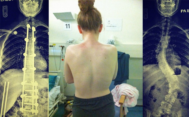 Tamara's X-rays and back pre-op