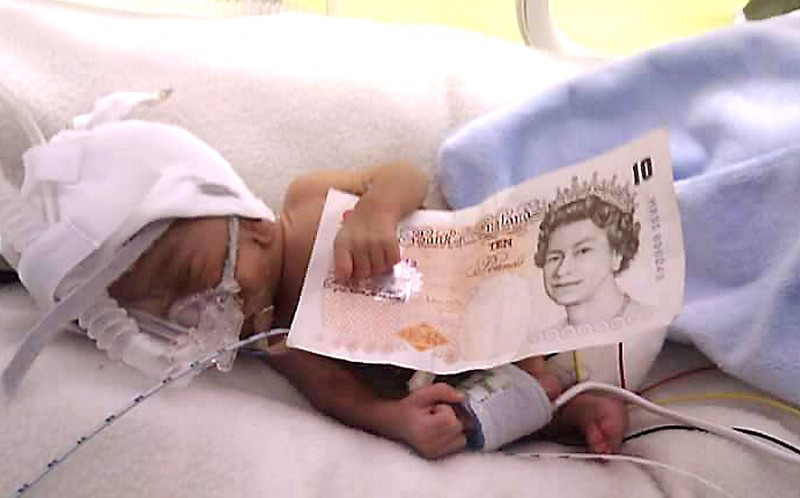 Levi Philips no bigger than a 10 pound note at 32 weeks old
