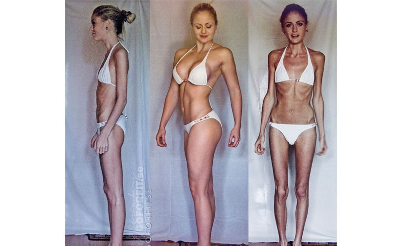 anorexictoweights