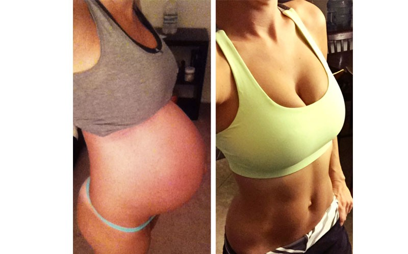 Kirsty's bump and post-pregnancy tum