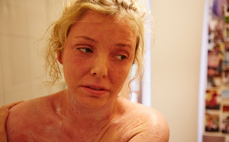 Stunning Woman Left Shedding Like A Snake From Rare