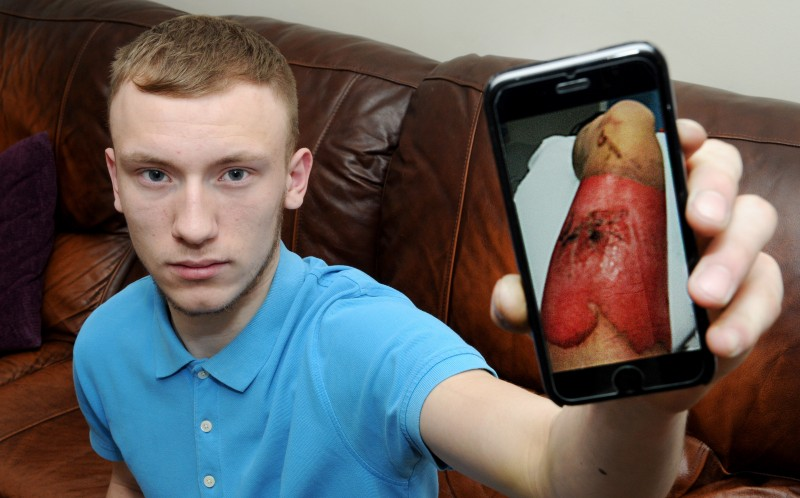 Dan Walker holding his mobile with a picture of his injuries