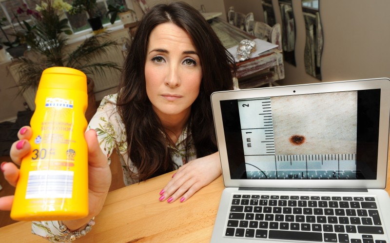Laura Creane, 31, from Warwickshire shows a picture of a malignant melanoma - a deadly form of skin cancer and holds a bottle of the SPF cream she uses to fight the effects