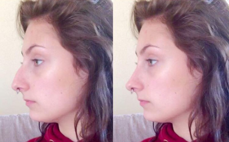 Bryony Aspinalls nose before and after