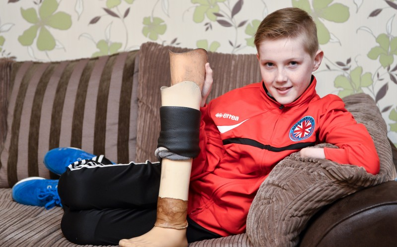 Thomas Atkinson with his prosthetic leg