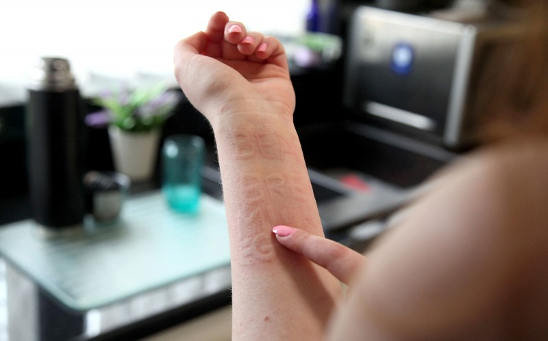 Lucy Pearce who suffers from Dermatographia which means her skin swells when a small amount of pressure is applied