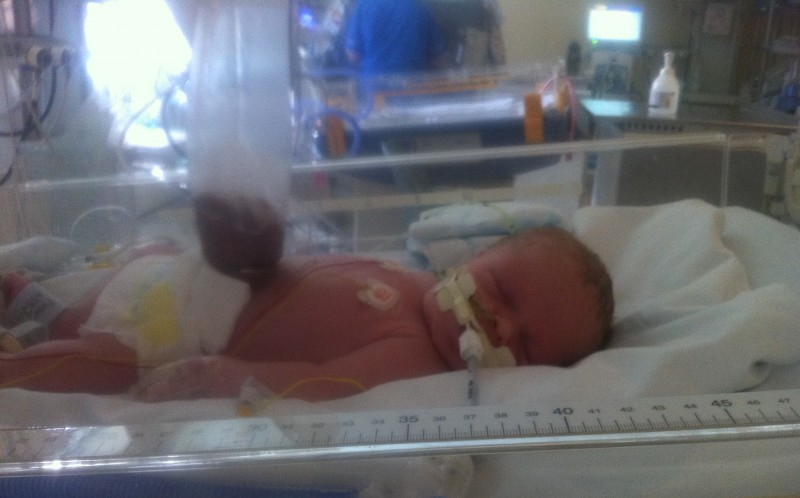 Millie Bartle when she was first born in hospital