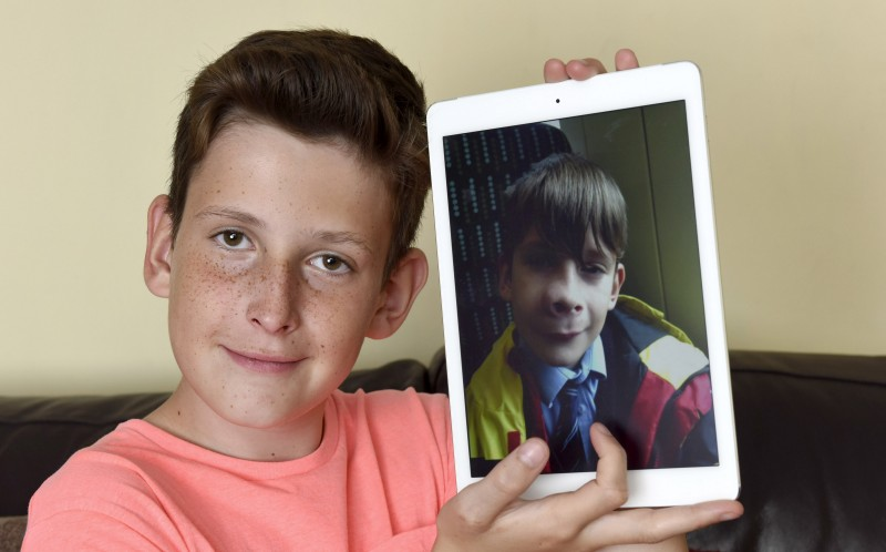 Boy Left With Giant Nose After Mosquito Bite Turned Out