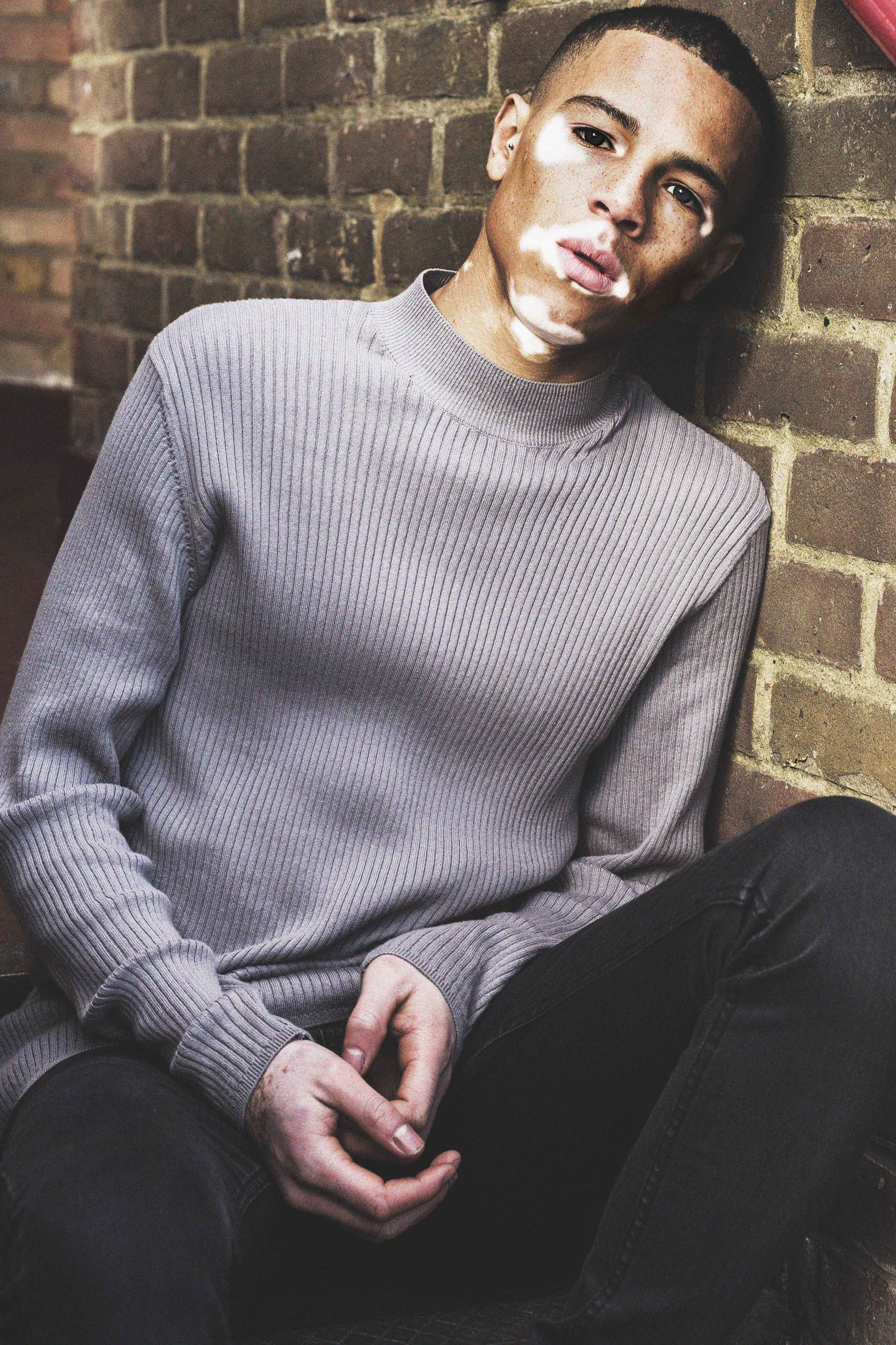 Young Man With Same Skin Condition As Michael Jackson Becomes A Model Caters News Agency