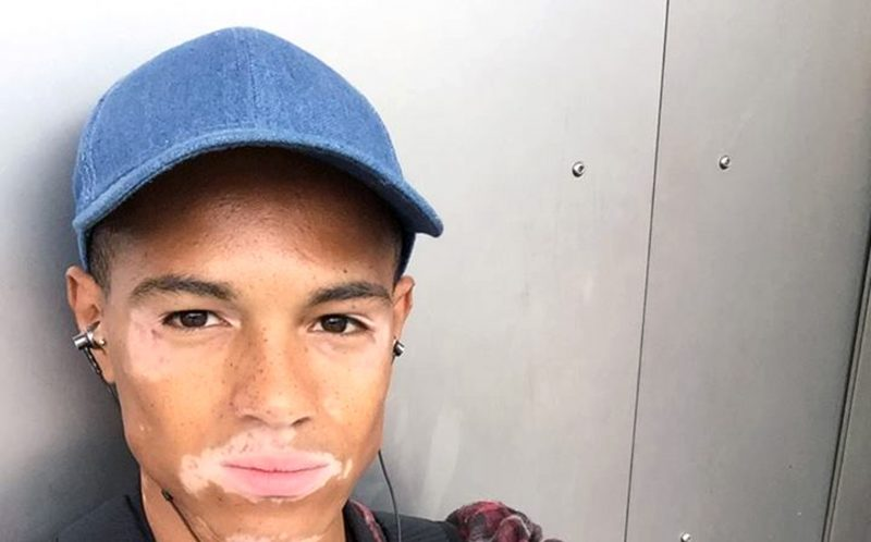 PIC FROM CATERS NEWS - (PICTURED: Niles Goodlad) - A young man with the same condition as Michael Jackson has embraced his patchy skin to become a model. Nile Goodlad, 20, from Walsall, West Mids, developed vitiligo - a condition that causes the skin to lose its pigmentation causing white patches on the body. The aspiring model has symmetrical vitiligo that began on his arms, legs and chest but as he got older the condition worsened and he has recently developed patches on his face. As a teen, Nile tried to cover his patches and often felt self-conscious but now thanks his family and friends, he feels comfortable in his own skin. And despite receiving stares from strangers in the street, Nile is proud of his unique patches and has now turned to modelling in the hope of showing how important diversity is. SEE CATERS COPY.
