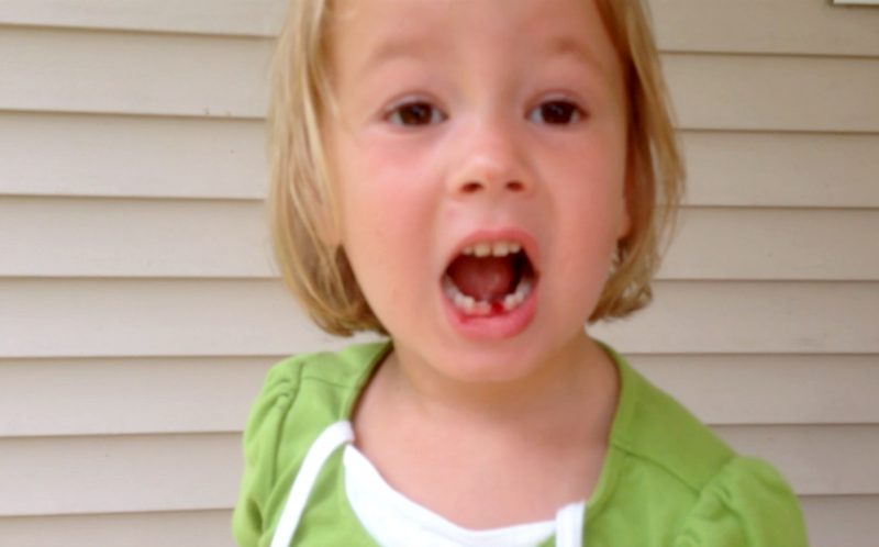 BOW AND ARROW TOOTH REMOVAL