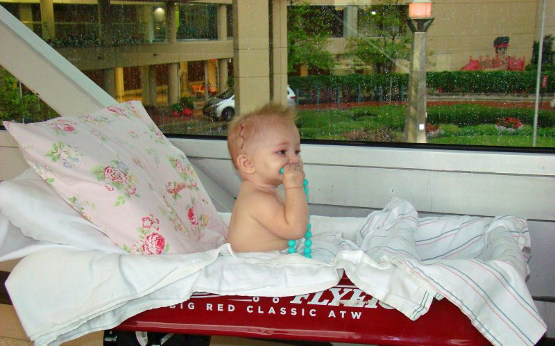 PICS BY NIKI SAUER / CATERS NEWS - Here is Aubrey in July when she had the surgery.