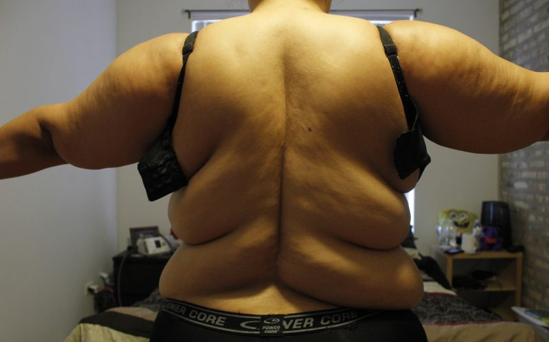 PIC BY DIONNE GOMEZ / CATERS NEWS - Dionne before weight loss.