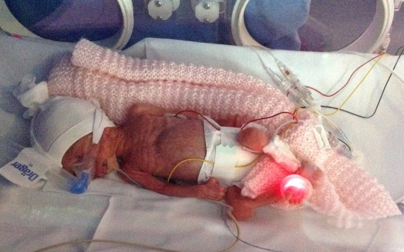 PIC FROM CATERS NEWS - Macey Micklethwaite was just 551 grams when she was born by an emergency caesarean section.