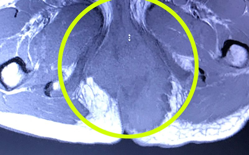 PIC FROM CATERS NEWS - A scan of Ellies tumour.