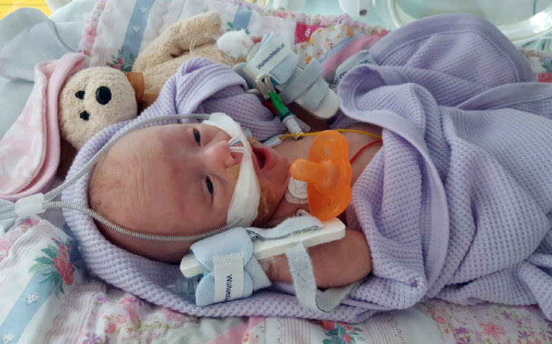 PIC FROM CATERS NEWS - (PICTURED: Emily in neonatal care with the oxygen to help her breath) - A baby who was saved by a sandwich bag after weighing just 560 GRAMS has finally been allowed home. Rhiannon Shades, 29, from Bedford, was terrified when she went into labour at 24 weeks pregnant - after being born naturally in her amniotic sac , tiny Emily was placed into a sandwich bag to keep her warm. She needed eight blood transfusions and was placed on 24/7 oxygen to help her breathe. But against the odds, and after three and a half months in neonatal care, Emily was allowed home last Tuesday (October 18) - one day before her due date. Rhiannon and her partner, Fane Henderson, 30, couldnt be prouder of their daughter and have since started blogging to help other parents. SEE CATERS COPY.